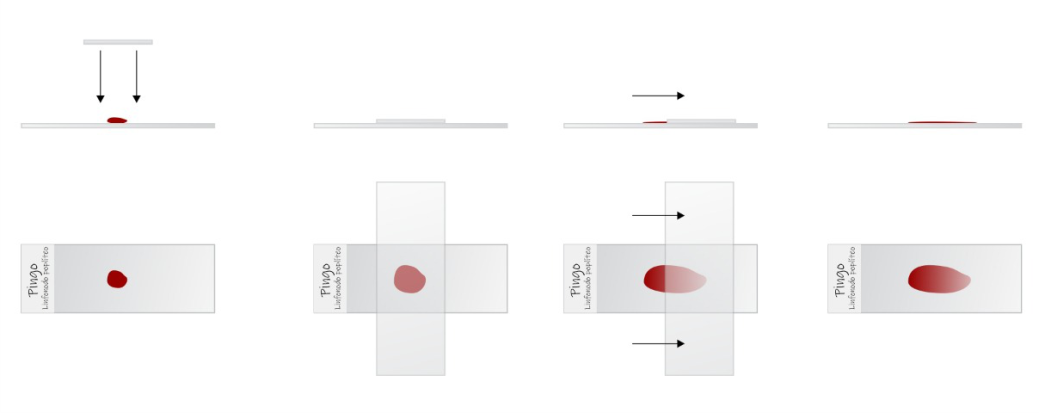 citologia-puncao-aspirativa-agulha-fina-imprint-observacoes-exame-categoria-citopatologia-laboratorio-veterinario-vetex